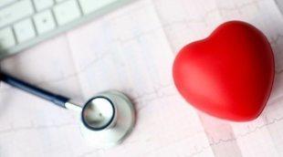 Beneficios del marcapasos para la salud