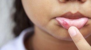 Las 3 causas principales por las que se produce el herpes labial