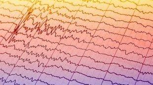 Cómo tratar la epilepsia